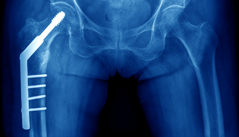 Docplexus Survey Series – #2: Indian Doctors' Opinions on Removal of Orthopedic Implants